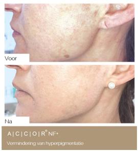 Hyperpigmentatie accor