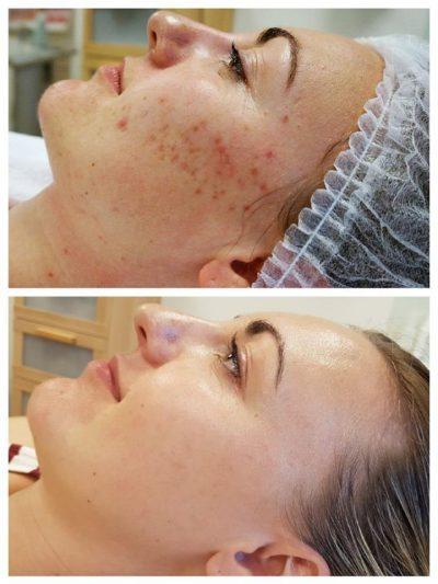 Acne behandeling De Wildt