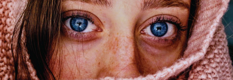 Acné littekens behandelen
