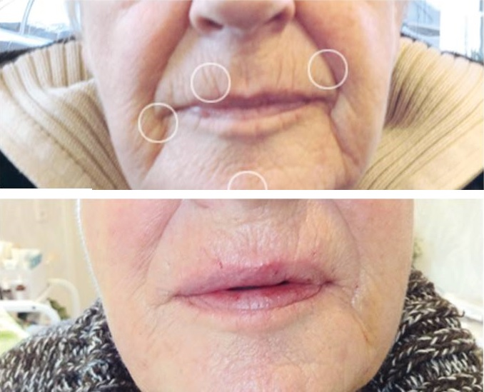 Lippen plasma lift