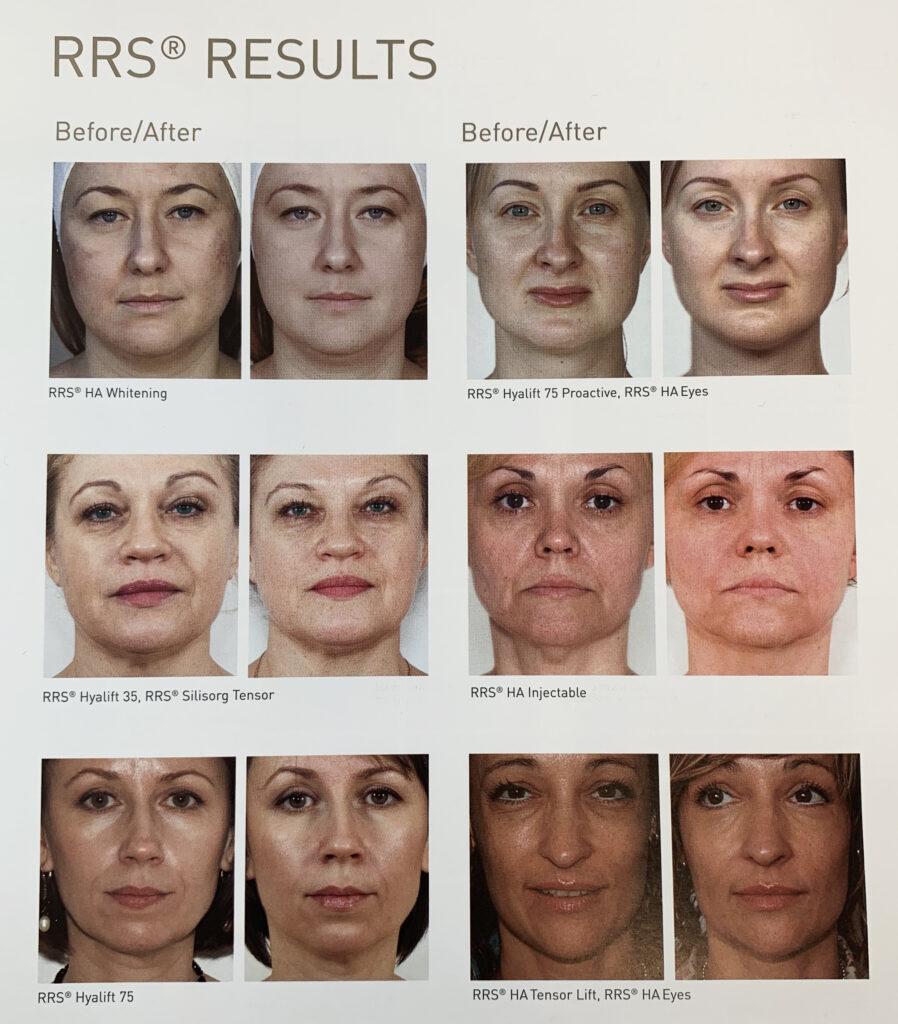 Resultaat skinboosters